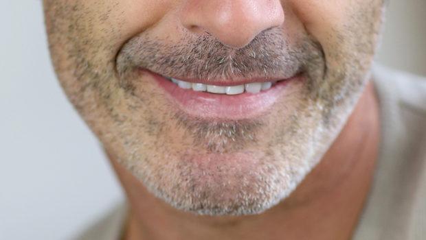Facial Rehabilitation