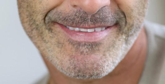 cubex facial rehab mature man face